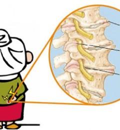 骨刺不是中老年人的专利 发现这些症状就要注意了