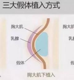上海哪家医院做隆胸手术好?上海玫瑰医院做隆胸效果咋样