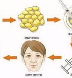 昆山铂特丽院长陈海朋详解:脂肪填充为何需要二次填充?