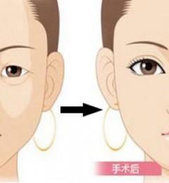 上海玫瑰整形眼部整形好吗?埋线双眼皮一般能保持多久