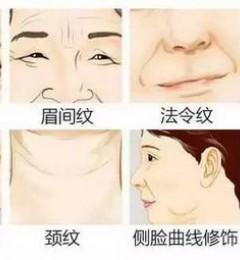 北京伊美尔爱康医院:线雕维持多长时间