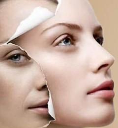 八大处整形杨欣:线雕微创悬吊除皱改变面颈部皮肤松弛