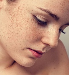 去斑�p淡斑美容产品不看成份 分分钟会致癌!