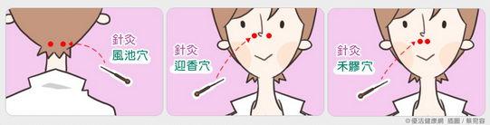 鼻过敏的中医治疗?