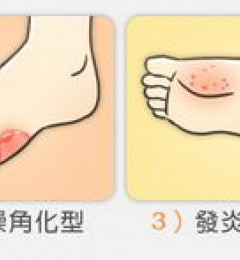 脚痒发作真难受,香港脚来了?
