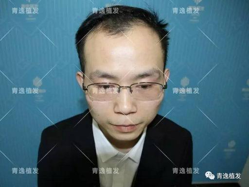一起见证程序员肖先生在深圳青逸植发医院植发蜕变