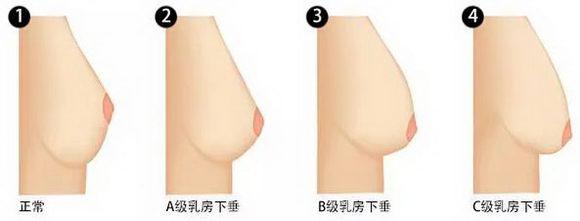 上海自体隆胸玫瑰医院怎么样  女人应该慢慢习惯用健康上妆