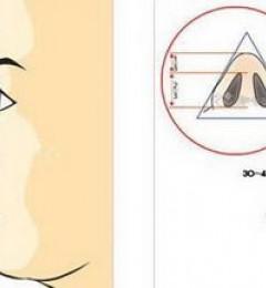 王小姐每天因为鼻子塌难过,去南京韩辰做了鼻整形以后........