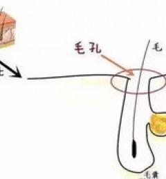 北京伊美尔爱康医院:超微小气泡是什么