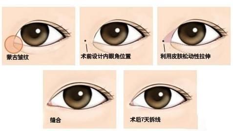 上海玫瑰医疗美容医院口碑怎么样?贴心细心全程陪导让您感受温暖