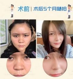 达拉斯鼻整形医生集团院长陈付国谈:隆鼻假体取出后鼻子会变形吗?