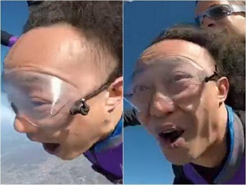 """重庆军科整形:别等脱成""""秃头""""才想到植发了!"""