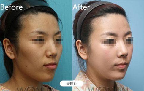 南京美贝尔整形医院是正规医院 提供全方位医疗美容服务