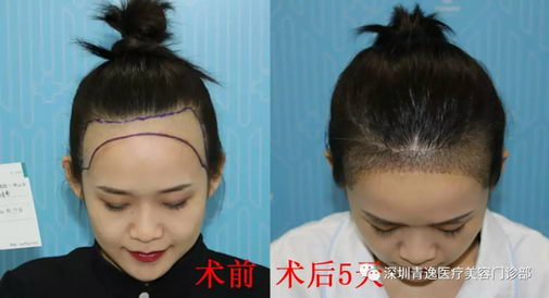 带您观看青逸植发医院发际线种植术后五天效果是什么样
