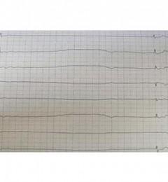重庆南川宏仁医院成功开展首例永久性人工心脏起搏器置入术