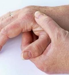北京德胜门中医院拨针治疗类风湿关节炎、类风湿有哪些临床症状