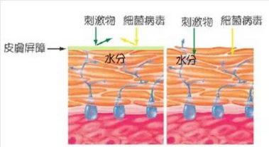 北京伊美尔健翔医院:角质层缺水怎么办