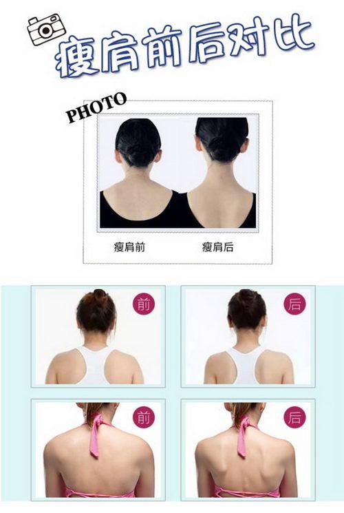 重庆玛恩皮肤美容医院:别让厚肩扼杀了你的气质