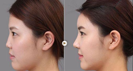 巴中依韩膨体隆鼻的优势有哪些