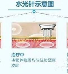 北京伊美尔幸福医院:水光针不是激素,人体不会产生依赖