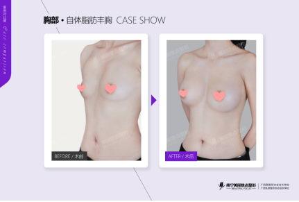 美国麦格晶面美胸假体国内首台植入手术在南宁美丽焦点圆满结束!