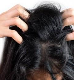 头发愈洗愈油 是否清洁过度头皮受损?