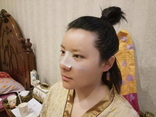 北京英煌医疗美容案例王勋隆鼻面部打造
