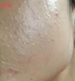 护肤品使用不当会不会出现闭口粉刺?北京伊美尔幸福医院解答