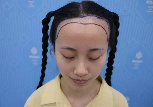 深圳青逸植发医院举办的微针植发现场直播,一同见证秀秀的蜕变!