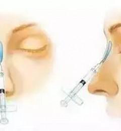 鼻部整形包括哪些术式?北京伊美尔爱康医院?