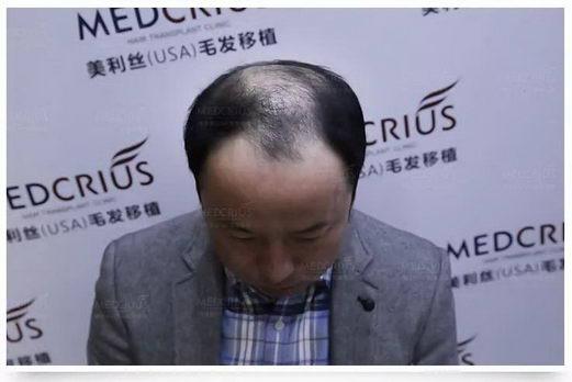 绥化植发医院怎么选择?美利丝植发告诉你