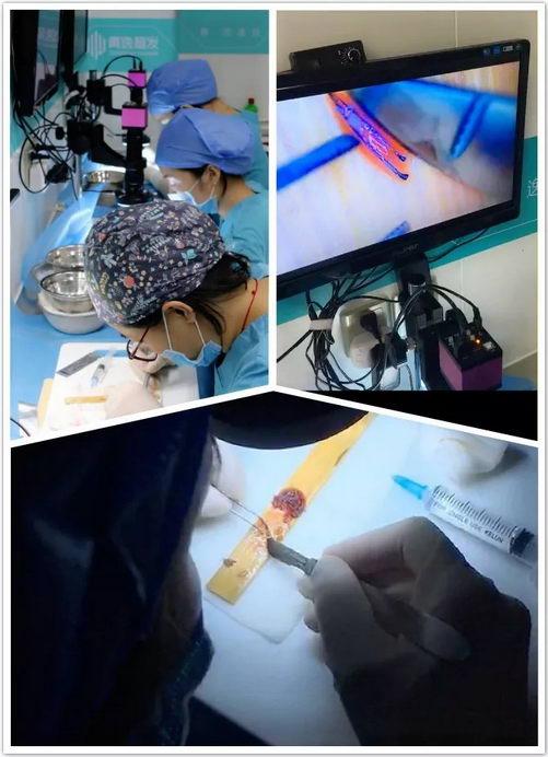 演员七七于6月23日到青逸植发医院做发际线调整并现场直播