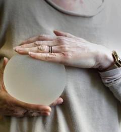 隆胸手术依旧是目前最受欢迎整形项目