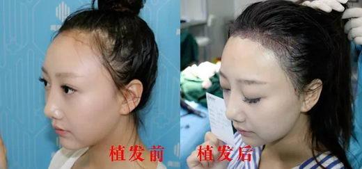 深圳演员七七青逸植发术后5天效果是怎么样的呢