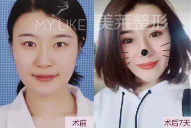 石家庄美莱医疗美容机构好吗 每天贴双眼皮贴3年后眼睛老10岁