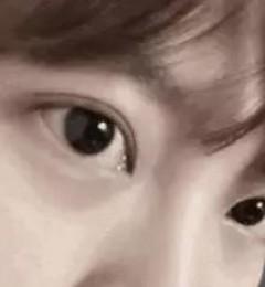 无锡尚美整形双眼皮和隆鼻怎么样?混血五官整形应该注意哪些