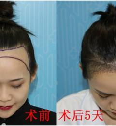 发际线高显脸大?看青逸植发如何拯救脸大女