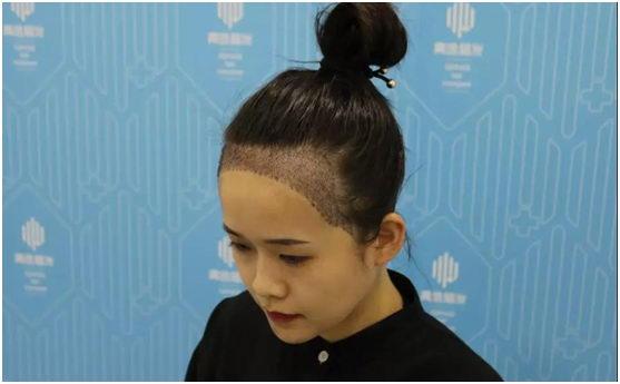 青逸植发种植发际线后的效果是什么样的,会不会留下什么伤痕呀?