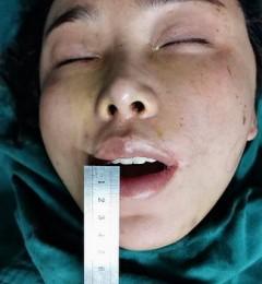 丁小邦:太阳穴注射骨粉后导致张口困难怎么办