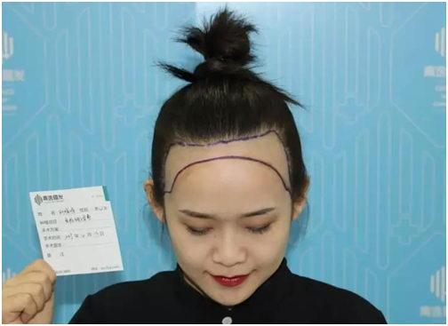 大脑门宽额头还有救吗?青逸植发医院发际线种植了解一下?