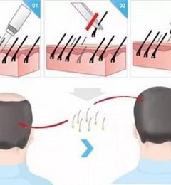 很多发友问青逸植发医院的植发手术时间有多长?