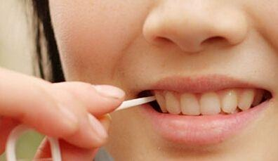 饭后用牙签剔牙 小心牙缝会越剔越大