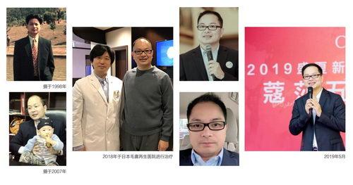 东方航空 ×《东方风尚》专访|日本医学黑科技毛囊再生技术探秘之旅