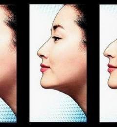 武汉中翰整形医院隆鼻:私人订制塑造理想美鼻