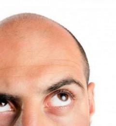 """治疗男性中年""""秃顶""""危机药物 可能带来新的潜在风险"""