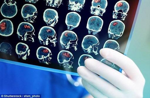 研究发现阿兹海默症的性别差异巨大的原因