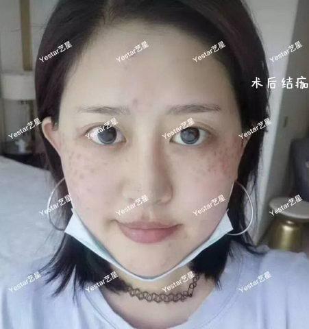 深圳艺星整形医生王明海:『超皮秒』你知道素颜自带磨皮什么感觉吗?