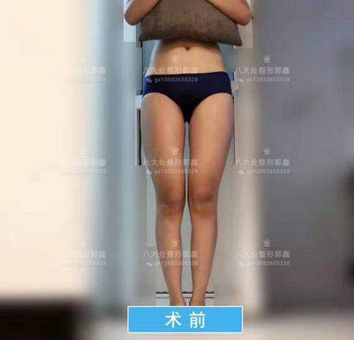 八大处郭鑫:大腿吸脂需要多少钱价格