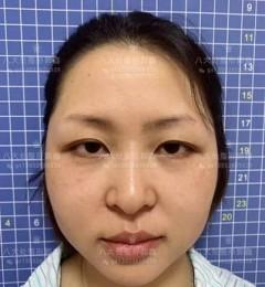八大处整形郭鑫:面部吸脂有什么优势!