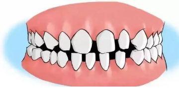 """牙周炎为什么非治不可?不仅""""满口无牙"""",它的危害远比你想象中严重得多!"""
